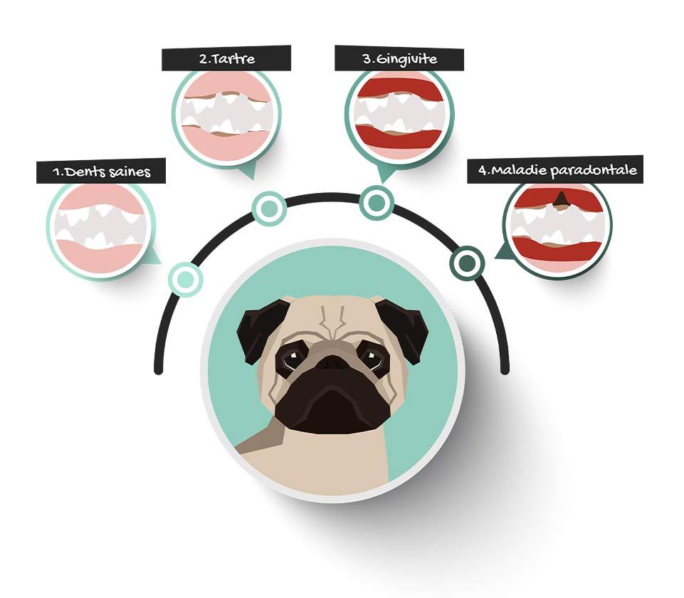 Les différents signes d'une mauvaise hygiène bucco-dentaire